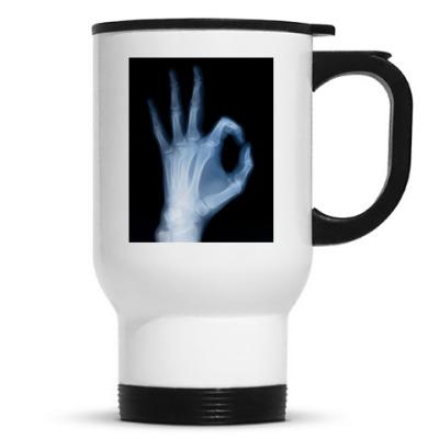 'Рентген'